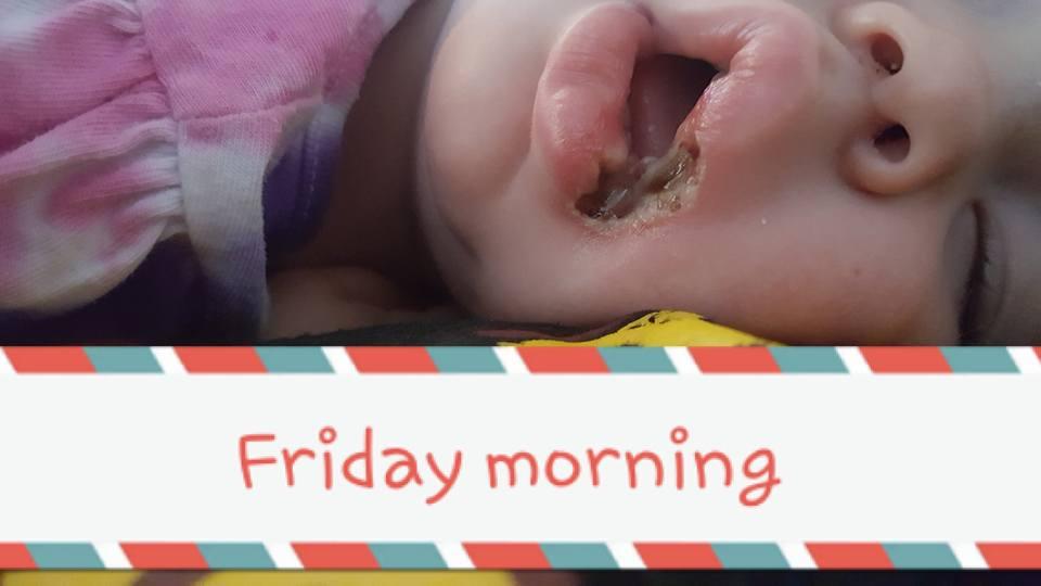 19個月大女童「舔了手機充電器」嘴角嚴重灼傷潰爛,12天後媽媽心疼PO照警告所有人!(慎入)