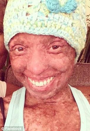 她因吃抗躁鬱藥「90%皮膚脫落」接近失明,如今重獲新生「宛如破繭的蝴蝶」!(慎入)