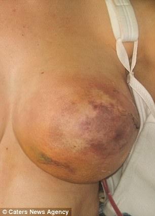 女性要注意!她為預防乳癌卻「罹患壞死性筋膜炎」,連「乳頭都壞死脫落」險喪命!(慎入)