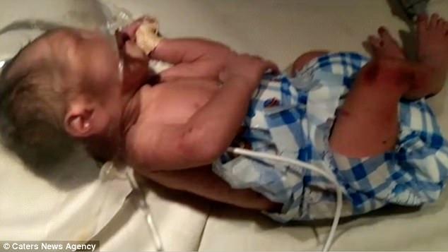 女嬰被發現遭遺棄在垃圾箱裡「全身被螞蟻覆蓋啃食」,只因「不是男生」被拋棄