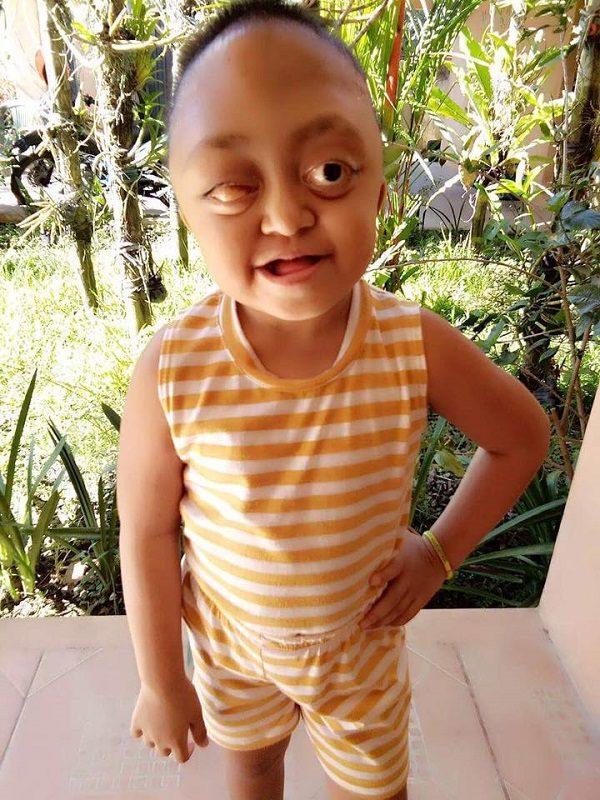 5歲女童罹患怪病「眼睛凸起臉部變形」慘被母親賣掉強迫行乞+暴打,但這名男子現身給她新生命!