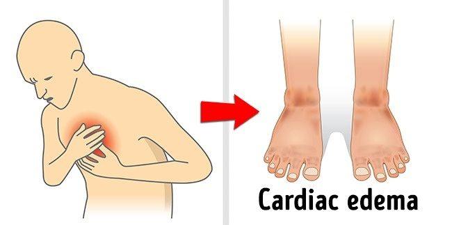 8個造成身體「嚴重水腫」的錯誤壞習慣元凶,久坐工作的人「這樣做」輕鬆瘦下半身!