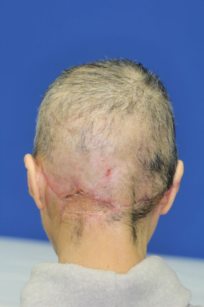 64歲婦人發生意外,鼻子以上頭皮帶耳朵被扯下見骨。1年後復原「正面臉」是最美奇蹟!