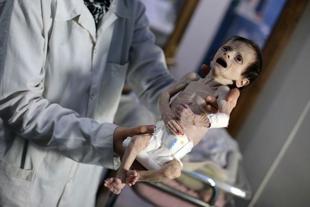 敘利亞戰亂不斷,不到2公斤嬰兒骨瘦如柴活像「乾屍」…全球心碎!