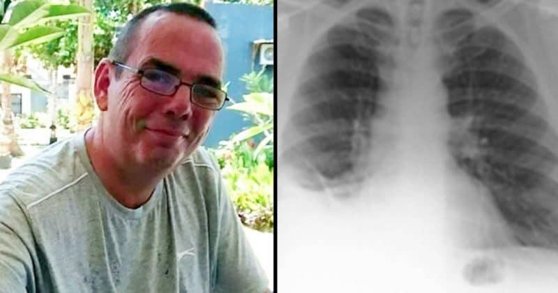 47歲男狂咳嗽1年以為是肺癌,開刀切除後才發現是「最快樂的童年回憶」