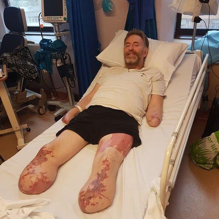 男子還以為只是感冒,最後為家人「截肢四肢」求保命!