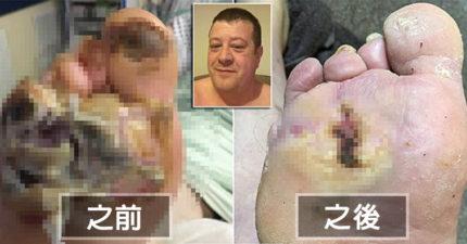 男子10公分傷口被「放入400條蛆」,短短4天就救了他一命「躲過截肢命運」!(慎入)