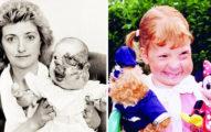 她出生時臉部嚴重畸形經歷「14年重建手術」,如今她變美美幸福嫁給帥哥!