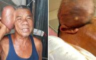 71歲老翁擁有「兩個頭」每晚無法入睡,成功把15公分、2公斤的頭「切掉」內含物超驚人!