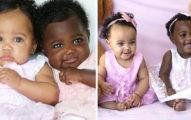 黑人基因就是屌!超罕見「黑白雙胞胎」遭網友狂酸「黑檀木VS象牙白」長大後眼睛超迷人
