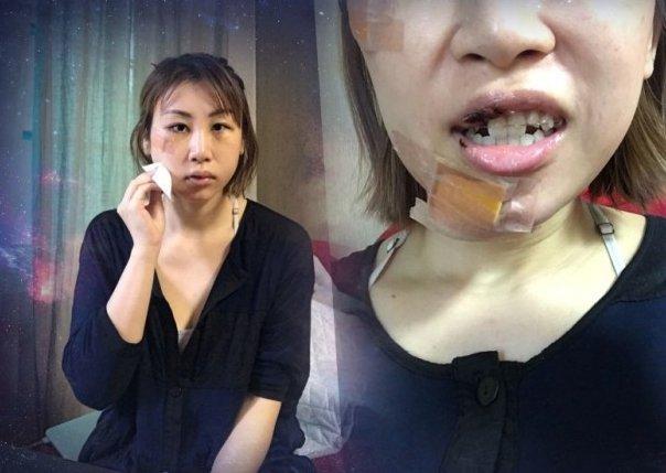 猛撞136公斤钢椅「整排牙齿断裂」缝23针,女歌手几近毁容:好痛苦 -15100248488696fyhe