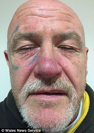 爛醉阿伯一覺醒來臉上驚現「雷朋太陽眼鏡」,花2年治療後現在變這樣