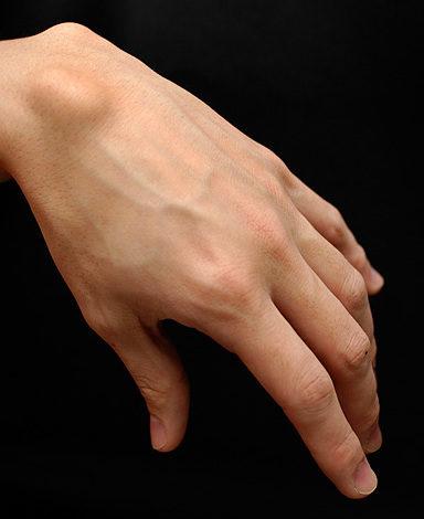如果你的手腕這裡「凸一塊」,請你立刻趕快去醫院報到!廚師、美髮師、上班族千萬不能大意!