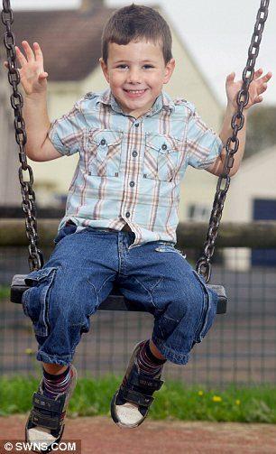 為消除額頭胎記小男孩長出「惡魔角」備受嘲笑,手術後變成「哈利波特」成果超棒!
