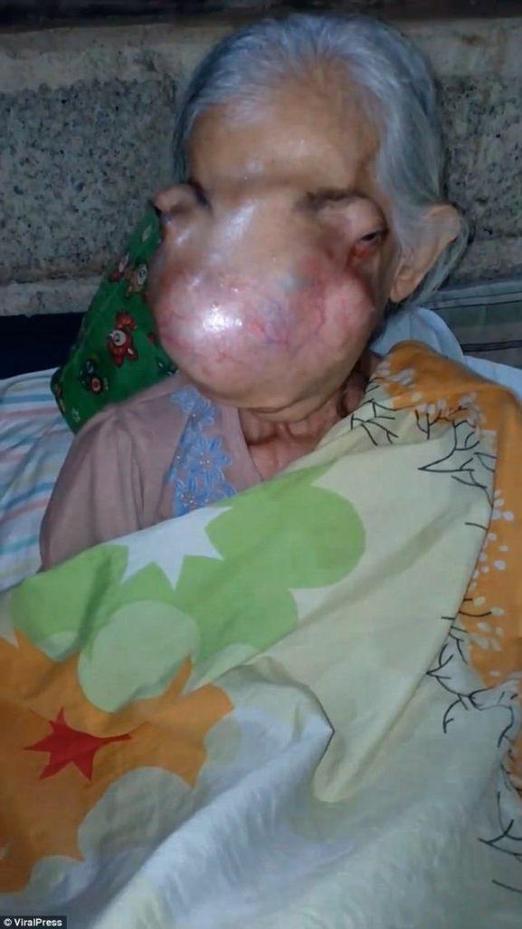 老婦患怪病「整張臉骨頭碎裂」眼球被擠到兩側,一開始也只是鼻竇炎...