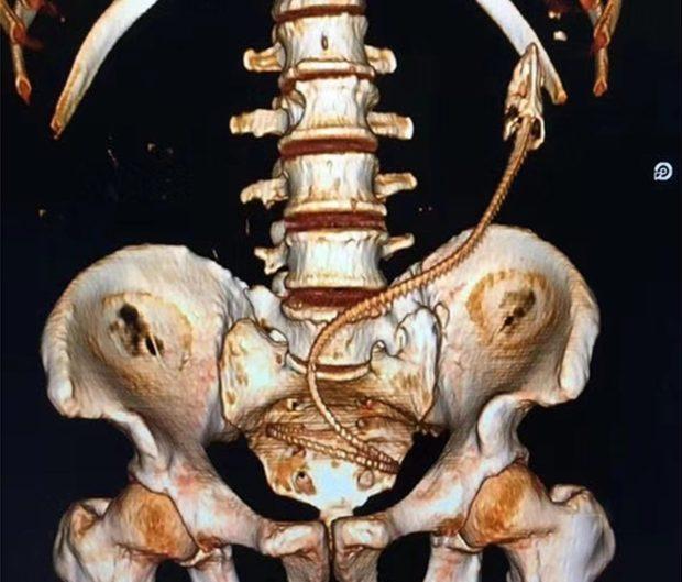 肛門塞「活跳跳泥鰍」靠手術才取出,醫生問「怎麼進去的」他避而不談