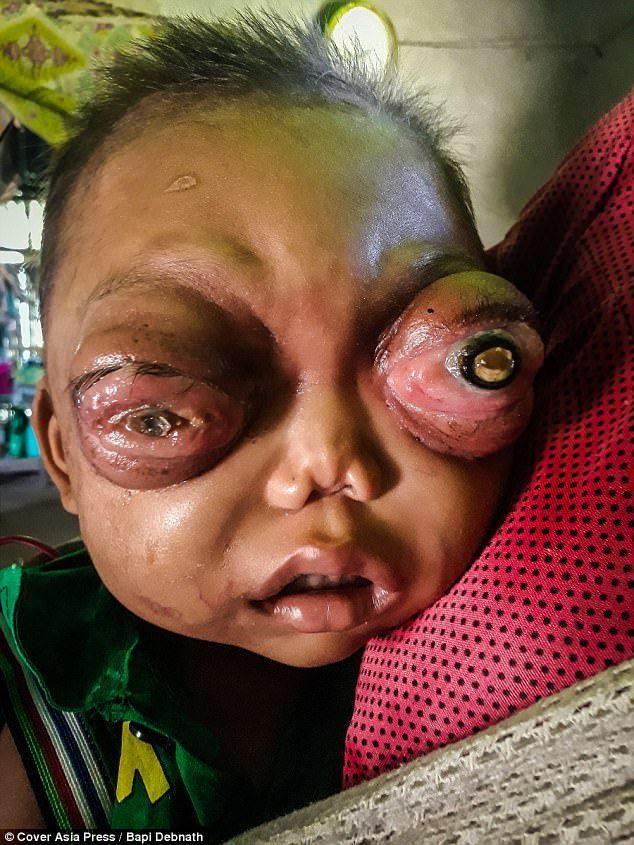 印度罕病男童得「眼窩假性腫瘤」又被診斷出「血癌」,化療出錯痛苦掙扎12小時不幸離世…