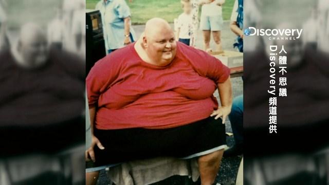 瘦越多長越大...60KG睪丸「在胯下左右擺盪」!他冒60%死亡機率堅持手術,醫生切開找到病因傻眼