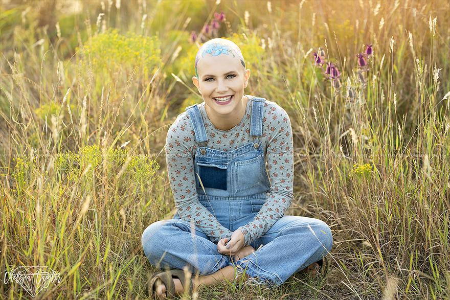 她因生病掉光头发却成为「最美的人」,为了拍毕业照妈妈花了数个小时在她「光头上种花」! -alopecia-senior-photoshoot-madisyn-babcock-chelsea-taylor-1-5a09f3ed5ec07__880