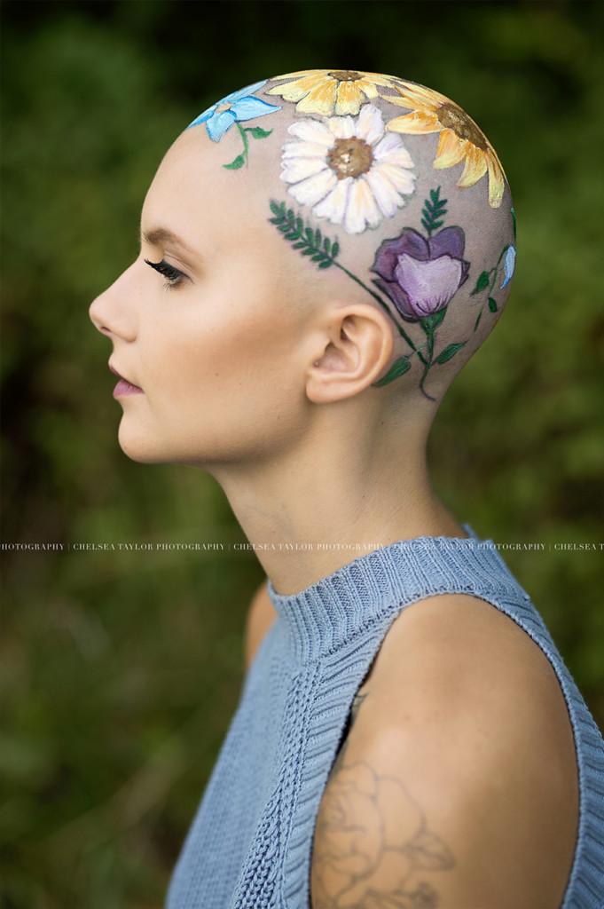 她因生病掉光头发却成为「最美的人」,为了拍毕业照妈妈花了数个小时在她「光头上种花」! -alopecia-senior-photoshoot-madisyn-babcock-chelsea-taylor-3-5a09f3f2774e5__880