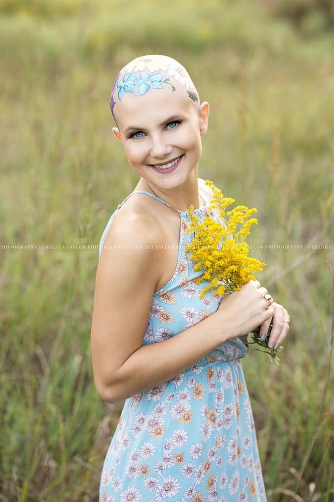 她因生病掉光头发却成为「最美的人」,为了拍毕业照妈妈花了数个小时在她「光头上种花」! -alopecia-senior-photoshoot-madisyn-babcock-chelsea-taylor-5-5a09f3fa00085__880