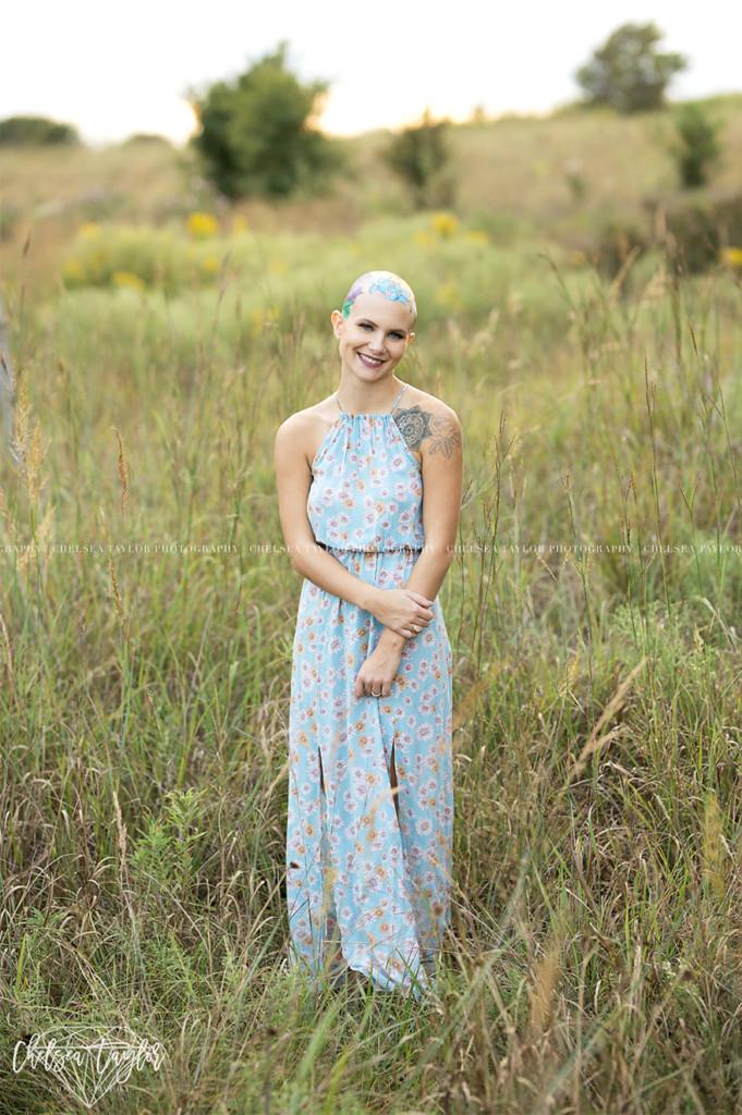 她因生病掉光头发却成为「最美的人」,为了拍毕业照妈妈花了数个小时在她「光头上种花」! -alopecia-senior-photoshoot-madisyn-babcock-chelsea-taylor-6-5a09f3fcccfe5__880