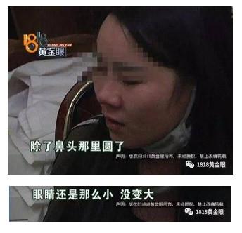 她夢想擁有「Baby眼睛+熱巴鼻子」砸46萬整形,繃帶拆下瞬間「四不像」連爸媽都慘認不出來!