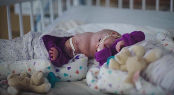 頭顱相接「連體女嬰住院485天」,爸媽堅持不放棄「等待11小時分離手術」...終於如願過到第1個感恩節!