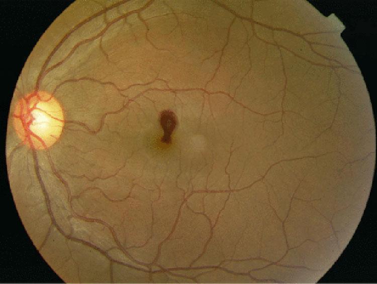 男子一早起床突然「左眼失明」,醫生:你昨晚是不是高潮太激烈?