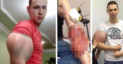 俄國21歲健身狂被爆料注射禁藥,二頭肌「漸漸液化」抽出液體畫面可怕...