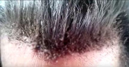 看完這支超嚴重噁心頭蝨的影片,你今天可能會洗頭洗個10次!