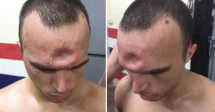 拳擊手比賽時吃了一記肘擊「前額整個陷下去」!復原後模樣有點像生化人!