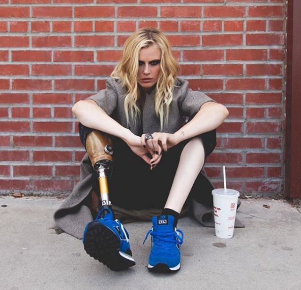 女模因使用衞生棉條而截肢!她崩潰:另一支腳也不保了