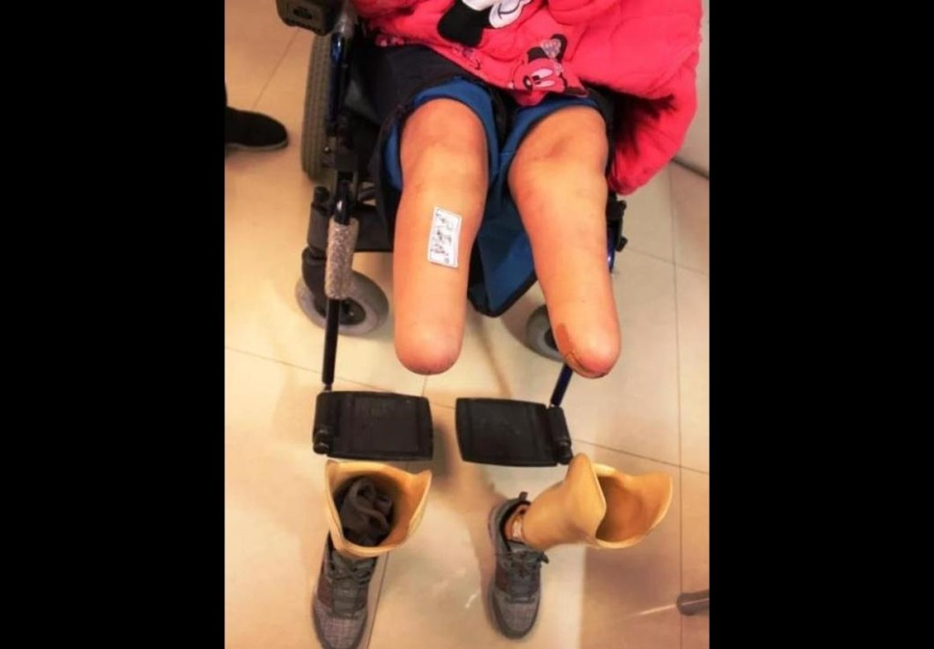 高中妹遭變態「拿磚頭敲暈硬上」,又被當屍體丟棄「醒來後雙腿已被截肢」眼睛也看不見!