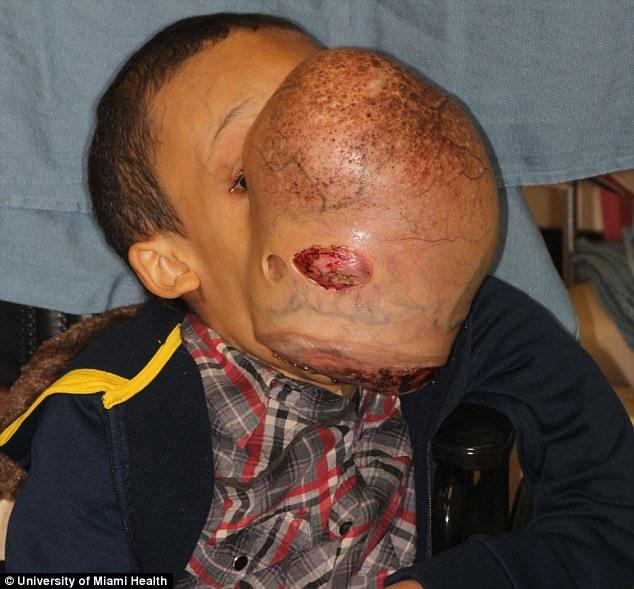 青春痘3年驚變「4.5公斤重籃球大腫瘤」,眼睛被卡在縫隙中讓人心疼