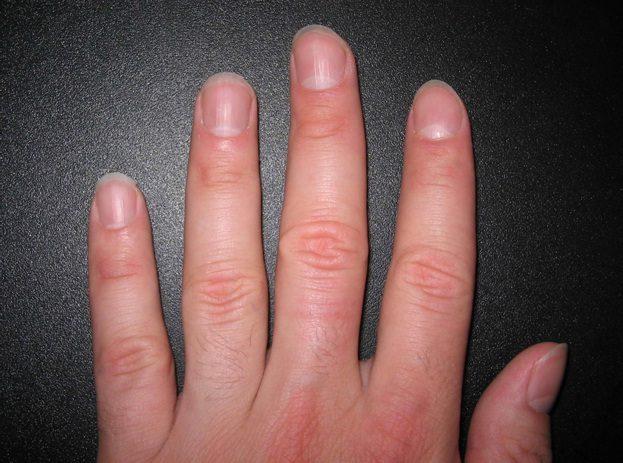 9種指甲暗藏的「疾病警訊」,甲面變白、皺皺的、出現黑線要小心!