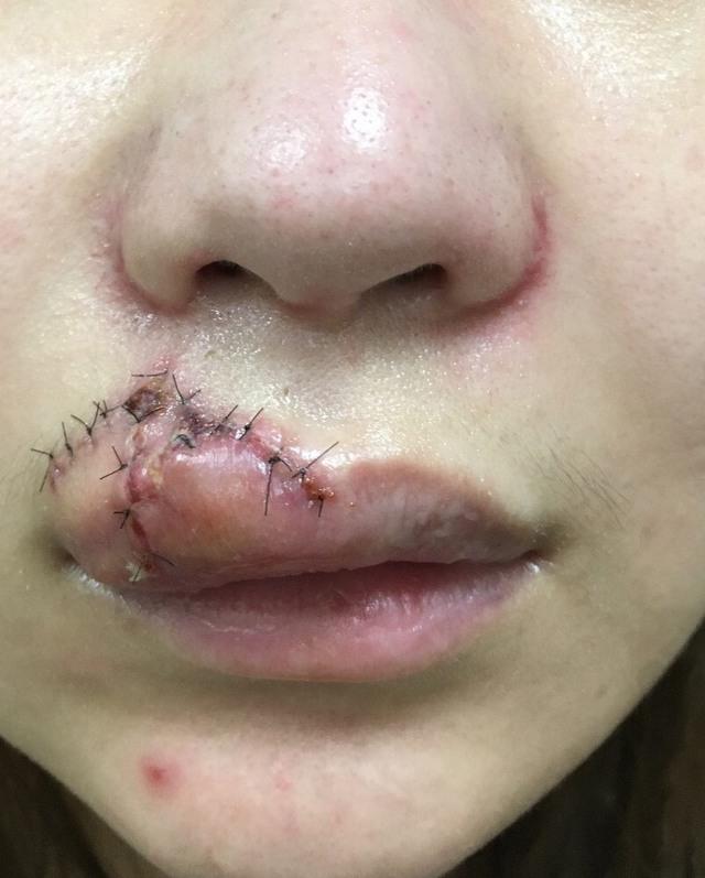 她向狗狗討親親,嘴慘被咬爛「從人中裂到嘴角縫38針」成終生印記!網友:活該