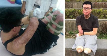 八仙塵爆黃博煒「雙腿+右下臂截肢」存活率曾剩5%,爸媽每天報時「原因讓全網淚崩」!