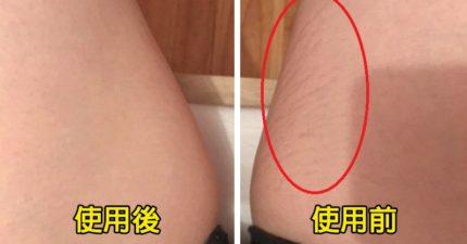 清除肥胖紋、妊娠紋的「超好用神物」!女網友偷分享「前後對比圖」短短幾周皮膚變超光滑!