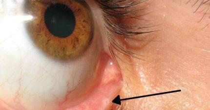 你知道眼睛內有這個「迷你孔洞」嗎?功能很有洋蔥