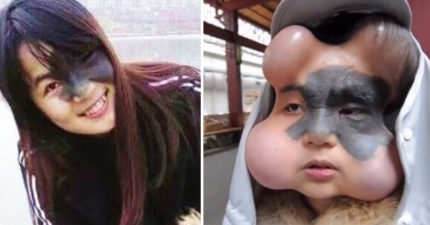 23歲「胎記正妹」為移除臉上「癌變巨無霸痣」,忍痛植4個擴張器、注鹽水卻慘成「葫蘆娃」!(悲慘片)
