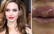 22歲正妹嫌嘴唇太薄「砸錢整成裘莉性感唇」...術後卻慘成「西毒歐陽鋒」!醫生:不幸中的大幸!