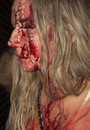 正妹夜店遇男子「手放雙腿間」推開阻擋,對方惱羞「拿酒瓶砸破她的頭」秒變驚悚血人