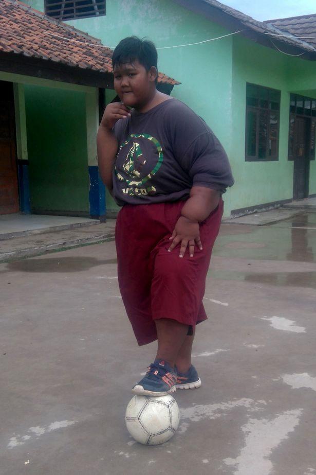 世界最胖190公斤男孩之前之前胖到連路都走不了,終於成功減肥「變帥」朋友都不認得!