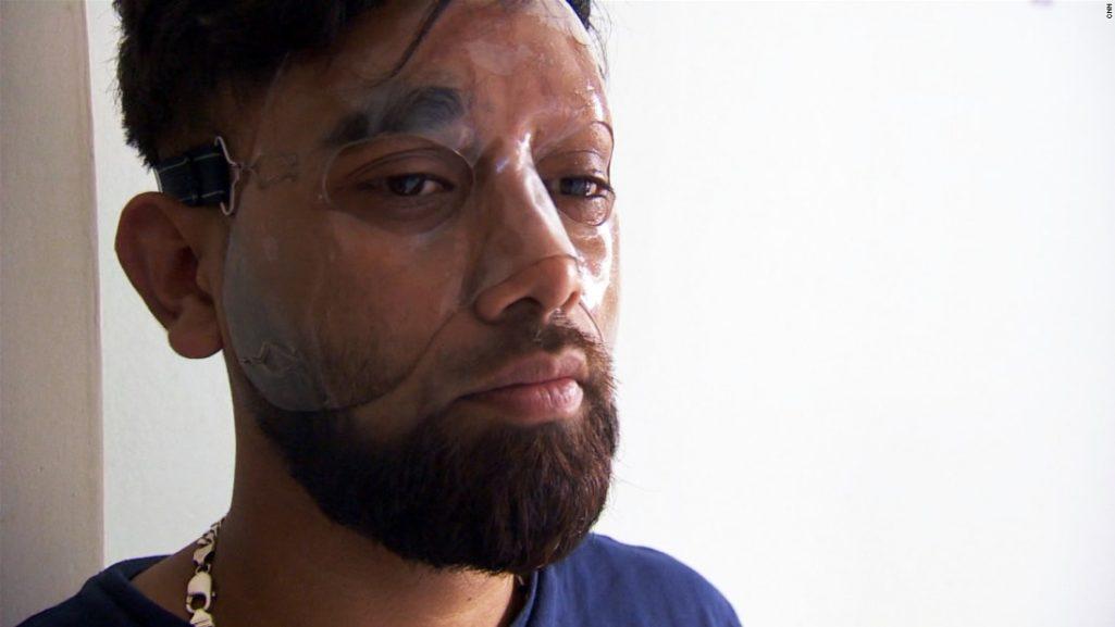 網紅求點閱模仿潑硫酸「朝路人臉上狂潑」被罵翻!他:破15萬讚我再拍第3支 (全程影片)