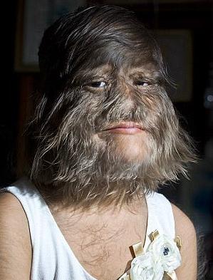 多毛女孩結婚了!第一次刮去毛髮終於看到她「真正的可愛容貌」