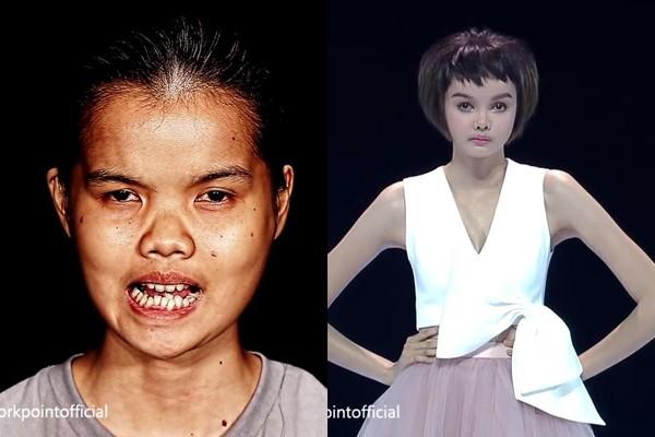 從小被笑「小丑」...20歲妹「改造成芭比娃娃」網友嘆:整型前更好看
