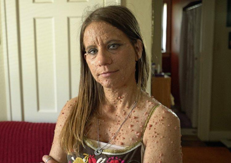 她全身「長滿6000顆腫瘤」被叫癩蝦蟆,如今「移除臉部千顆腫瘤」美貌超驚人!