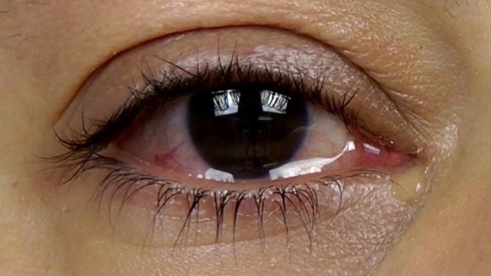 眼睛內「迷你小洞」是什麼?功能很洋蔥...一把鼻涕一把眼淚是有道理的