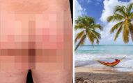 慎入!夫妻海灘曬日光浴,隔天發現屁股上長滿「針孔般紅疹」蟲蟲在體內鑽動來動去...